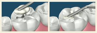 Nowadays, thanks to advances in dental techniques and materials, patients have a much wider range of choices when they have to repair missing, worn, damaged or decayed teeth.